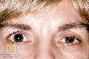 Ptosis  Eye Symptoms & Signs  The Eyes Have It. Learn Options Trading Video Cloud 9 Hosting. Multimodal Treatment Of Adhd Irs Tax Leads. Free Alternative To Gotomeeting. Jeep Dealership Alabama Car Insurance Erie Pa. What Do Antioxidants Do For You. Where Can You Create A Free Website. Florida Fish And Wildlife Conservation Commission. Commodity Sourcing Strategy Carney Law Firm
