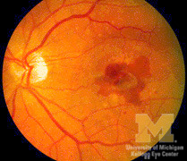 Subretinal Hemorrhage Ophthalmoscopic Abnormalities The Eyes Have It